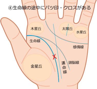 生命線の途中にクロス(十字紋)がある手相の意味