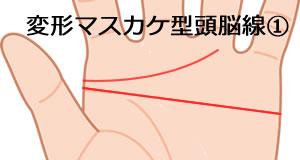 変形マスカケ型の頭脳線の意味