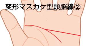 変形マスカケ型の頭脳線の意味_2