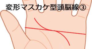 変形マスカケ型の頭脳線の意味_3
