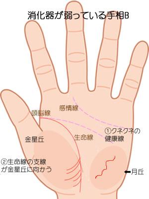 消化器の病気の暗示Bです。
